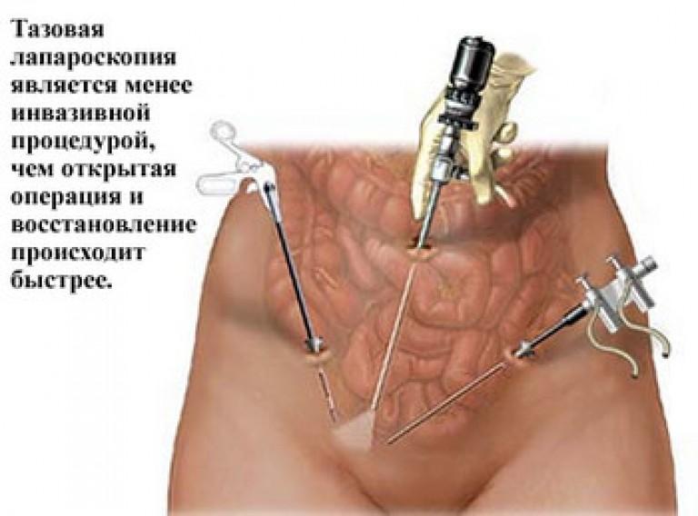 Если не лечить эндометриоз последствия Твой гинеколог