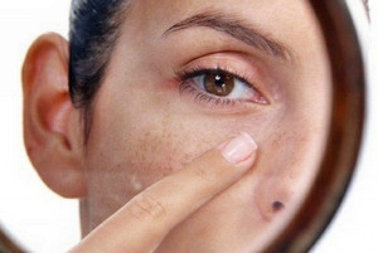 Как убрать пигментные пятна под глазами в домашних условиях быстро